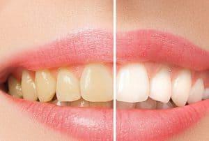 חשוב לתת ערך קידום בפייסבוק לרופא שיניים